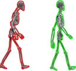 Los dolores sobre la espalda y en el pecho