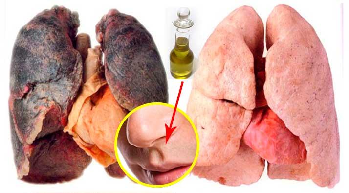 La codificación del fumar en el cuerno curvo las revocaciones